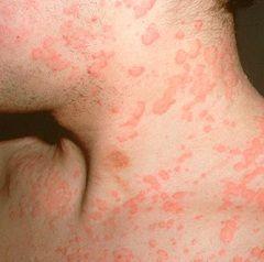 Мета лікування кропив`янки - визначення і усунення алергену