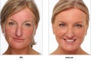 Лазерне видалення купероза на обличчі