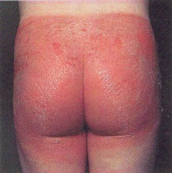 Обов`язковою умовою ефективного лікування є виключення контакту з алергеном