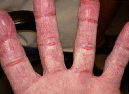 Порошок гірчиці використовують в народних рецептах для лікування шкіри рук