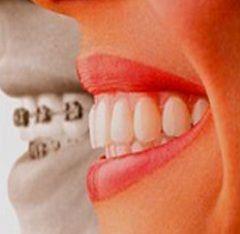 Брекет-система - один з методів лікування прикусу