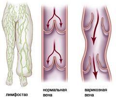 Лімфостаз