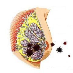 Містить - запалення молочної залози