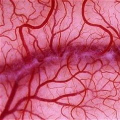 Мікроангіопатія