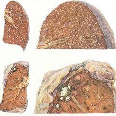 Міліарний туберкульоз