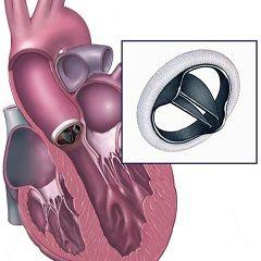 Протезування - один з методів лікування недостатності аортального клапана