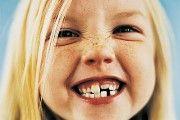 Неправильний прикус зубів
