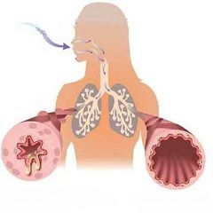 Обструкція дихальних шляхів