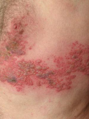 Оперізуючий лишай - це складне інфекційне захворювання.