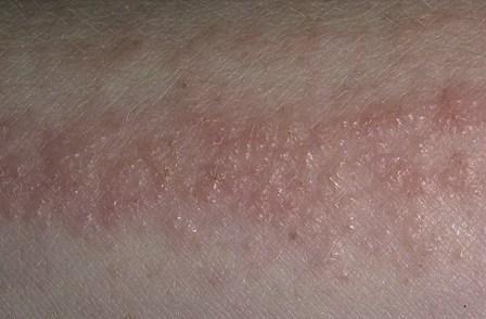 Алергічний дерматит проявляється навіть при дуже короткому впливі алергену