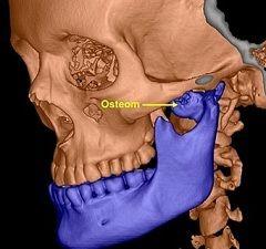 Лікування остеоми - хірургічне видалення