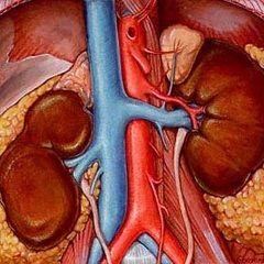 Гостра ниркова недостатність