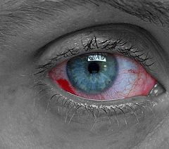 Почервоніння і набряк слизової оболонки - симптоми опіку очі