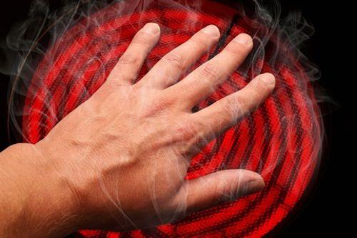 Необережне поводження з вогнем, парою або хімією - викликає опік