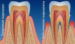 Збільшення глибини зубоясенних кишень - симптом пародонтиту