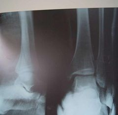 Перелом малої гомілкової кістки