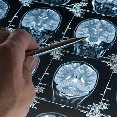 Методи діагностики та лікування переломів основи черепа