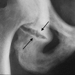 Перелом сідничної кістки