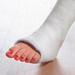 Методи лікування перелому стопи
