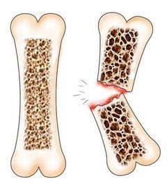 Переломи - ушкодження кісток з порушенням їх цілісності