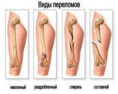 Види переломів кісток
