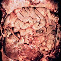 Перитоніт
