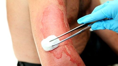 Опіки, отримані внаслідок впливу на шкіру рідкої кислоти або лугу, покриваються струпной кіркою