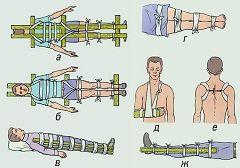 Накладення шини як перша допомога при переломах