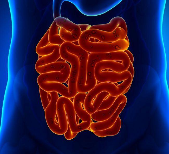 Поширення раку в кишках
