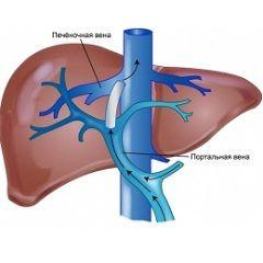 Портальна гіпертензія