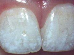 Флюороз - одна з причин білих плям на зубах