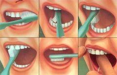 Правильна чистка ротової порожнини - профілактика хвороб зубів