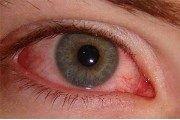 allergicheskiy-konyuktivit-300x198