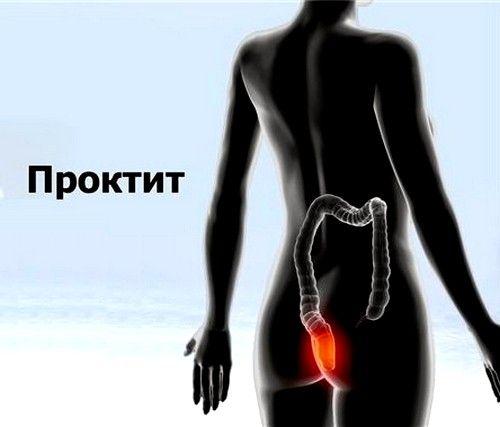 Проктит симптоми і лікування
