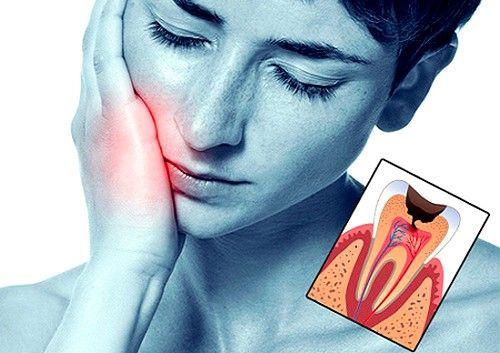 Консервативна терапія - лікування початкових форм пульпіту, що зберігає всі властивості зуба, дбайливо прибираючи вогнища запалення