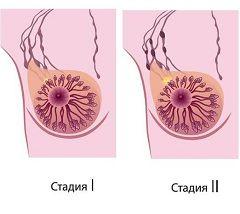 Види і стадії раку молочної залози
