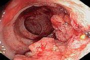 Rak tolstoy kishki - lechenie i prognozyi