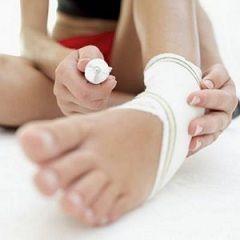 Розтягування м`язів: як лікувати