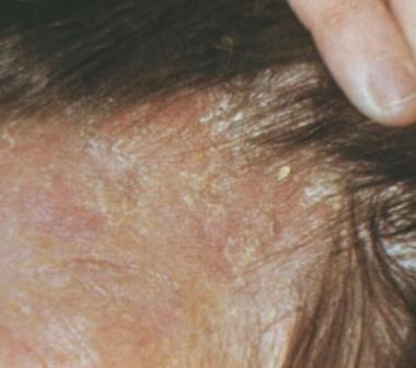 Себорея на голові: ознаки, причини, методи позбавлення