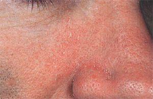 Себорейний дерматит (жирна екзема) на обличчі: причини розвитку, лікування та профілактика
