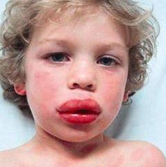 Анафілактичний шок - алергічна реакція