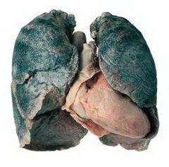 Причина силікозу - тривале попадання в легені частинок пилу з домішкою двоокису кремнію