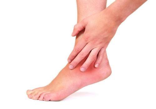 Симптоми і лікування артриту гомілковостопного суглоба