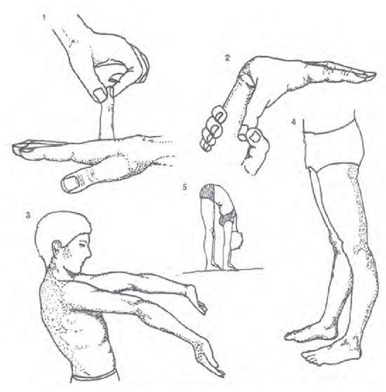 Симптоми і лікування дисплазії сполучної тканини
