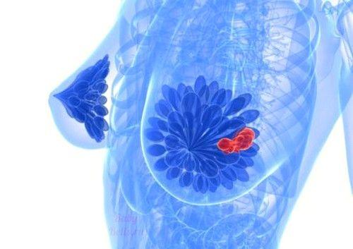 Симптоми і лікування кісти молочної залози