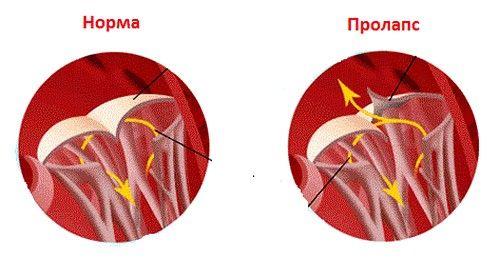 Симптоми і лікування пролапсу мітрального клапана