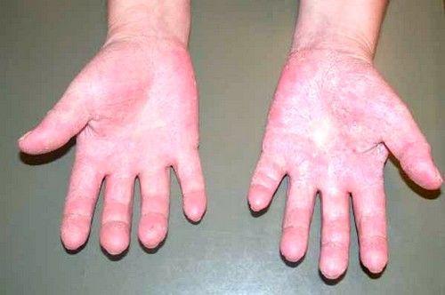 Симптоми і способи лікування алергії на холод