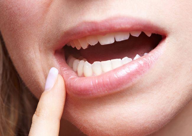 Симптоми і способи лікування кандидозу порожнини рота