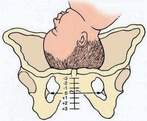 Симптоми і способи лікування сімфізіта при вагітності