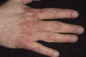 Симптоми псоріазу: прояв захворювання на різних частинах тіла